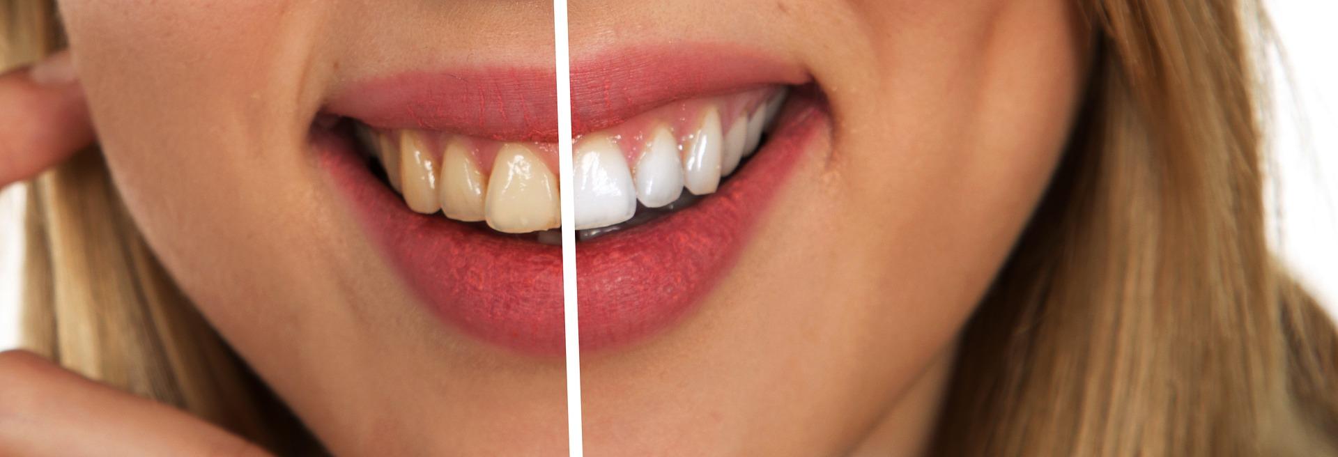 blanqueamiento dental despues de ortodoncia