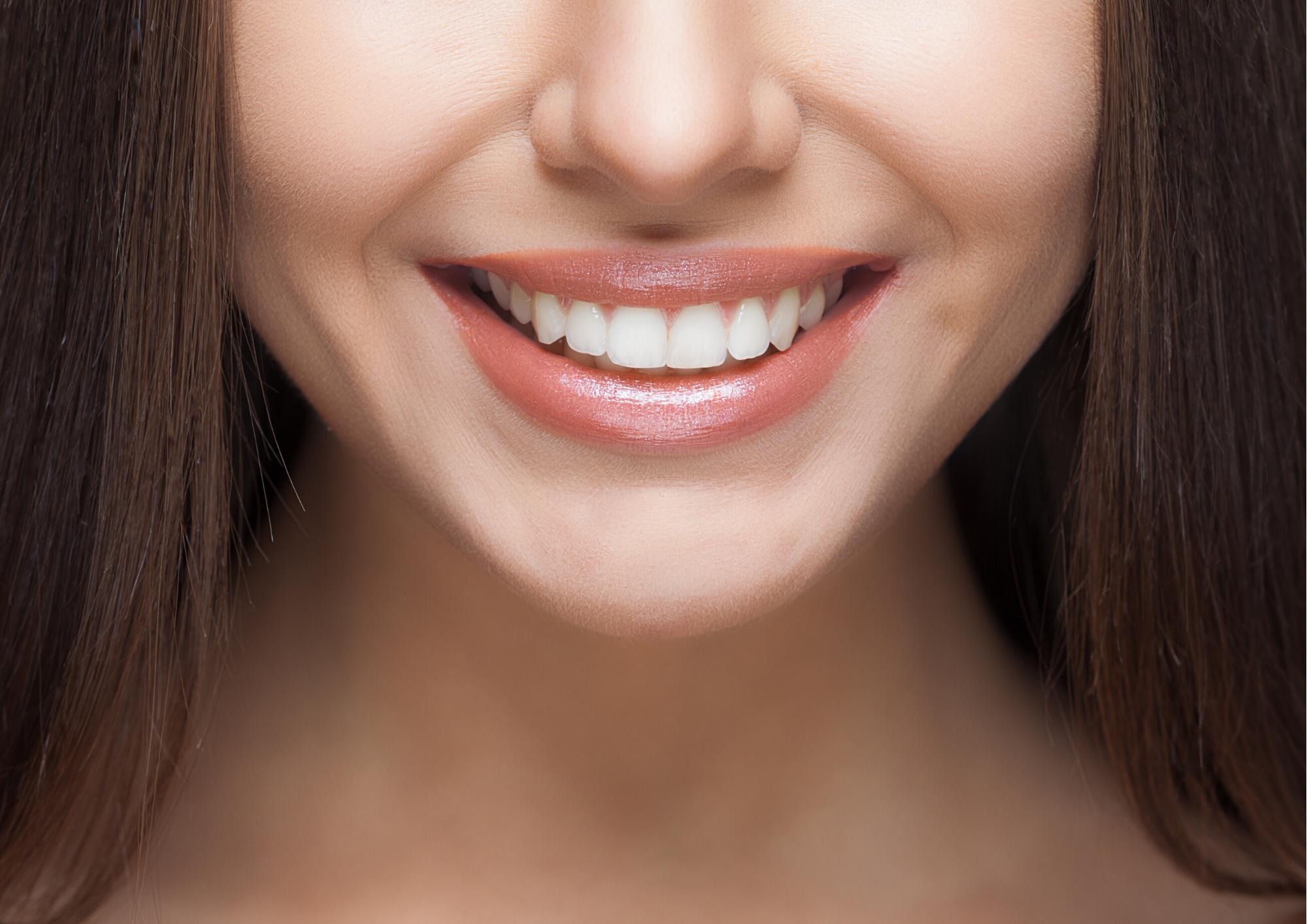 Limpieza dental y blanqueamiento dental en dental soler