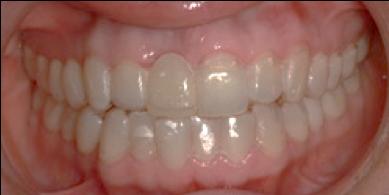 Ortodoncia - Alineadores transparentes