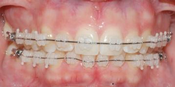 Ortodoncia Valencia. Brackets estéticos