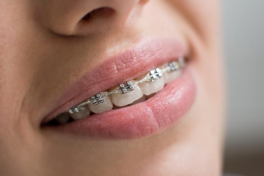 Tipos de ortodoncia de la clínica dental soler