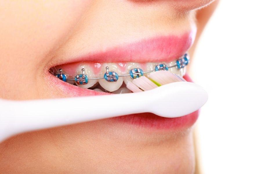 Cepillado de dientes con brackets